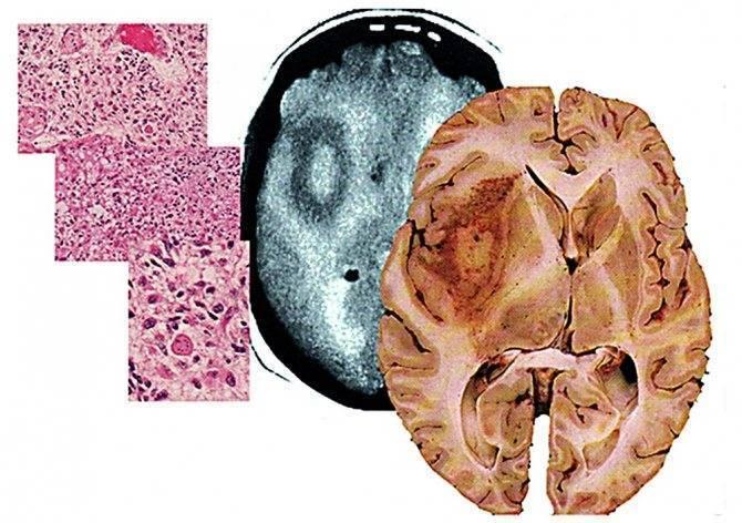 Глиома головного мозга — причины, классификация, лечение