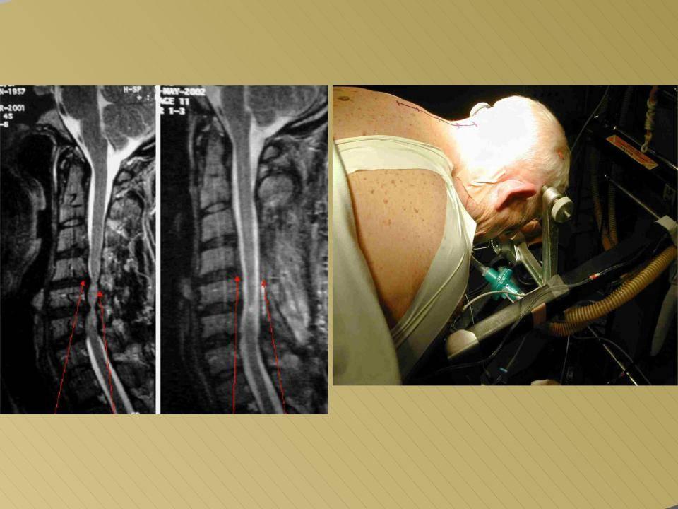 Что такое нестабильность шейного отдела позвоночника и как ее лечить?