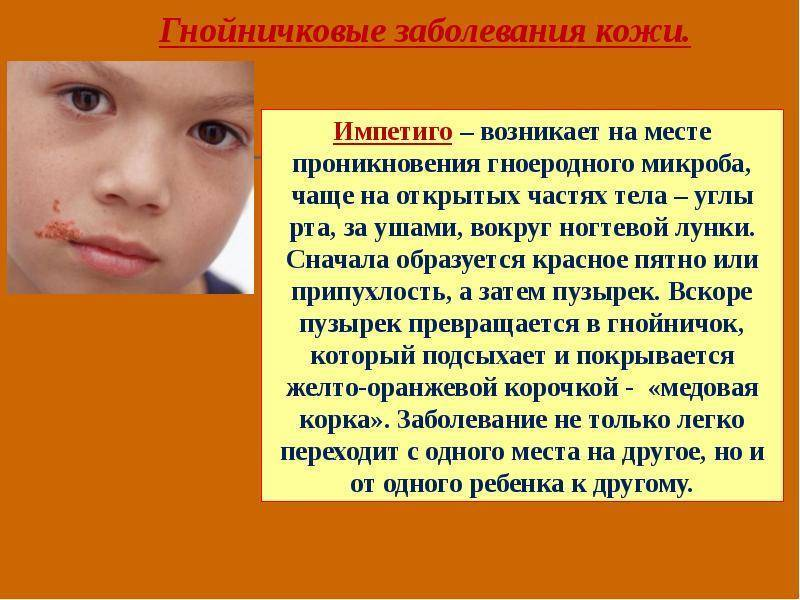 Инфекционные и неинфекционные заболевания кожи у детей