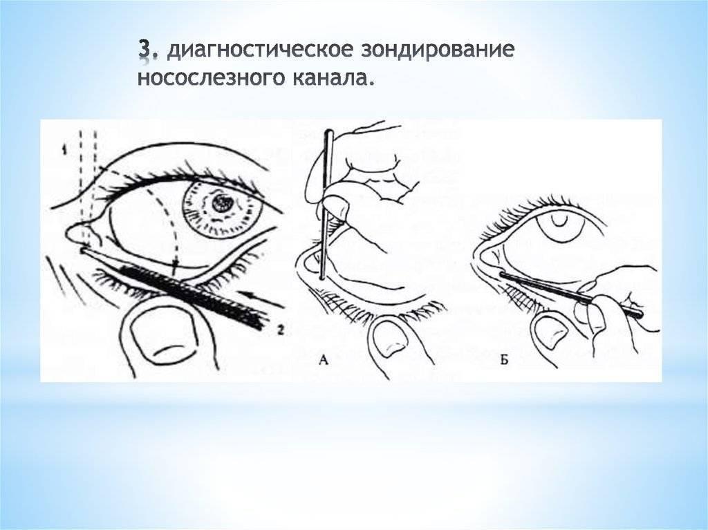 Массаж слезного канала у новорожденных — как массировать глаза грудничку