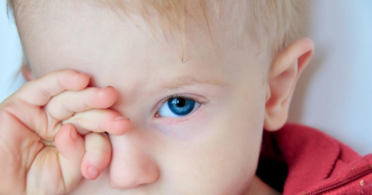 Ребенок трет глаза - почему и что делать в этом случае
