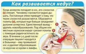 Заложенность носа у новорожденного - что делать, если забиты и плохо дышат носовые проходы?