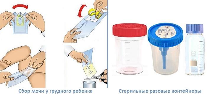 Анализ мочи по сулковичу: что показывает, и как его собирать?