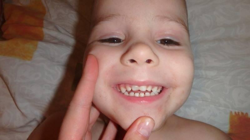 Что делать и чем лечить флюс молочных зубов на десне  у ребенка – лечение