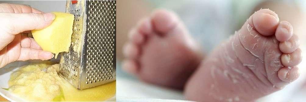 Почему шелушится кожа у новорожденного и грудничков: что делать родителям   малыш здоров!