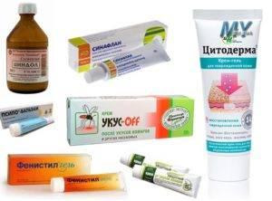 Как снять зуд при аллергии: противозудные средства для лечения в домашних условиях