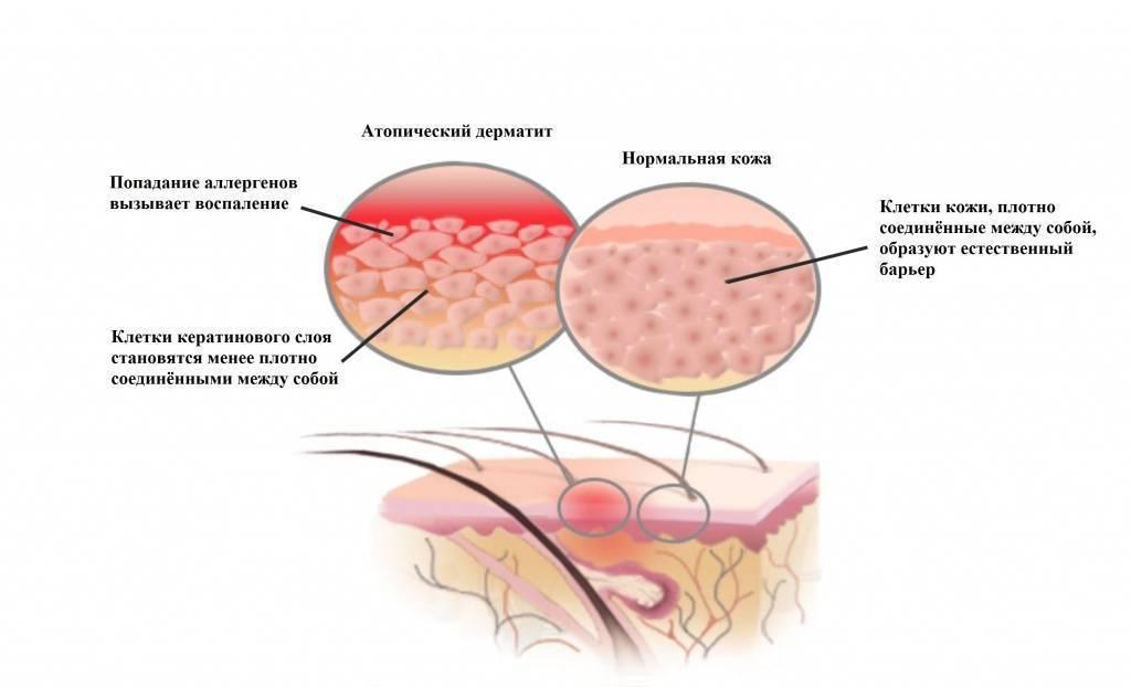 Аллергический дерматит у детей: симптомы на фото, лечение, прогнозы