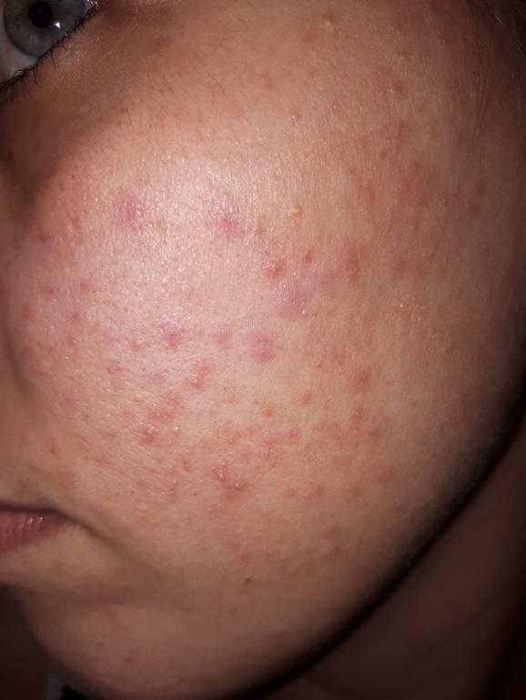 Все виды сыпи на лице у детей с пояснениями и фото: причины появления прыщиков и способы лечения - про папилломы