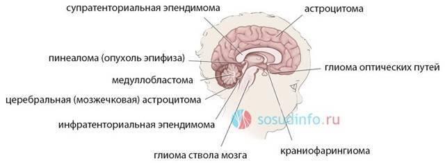 Опухоль головного мозга у детей — симптомы на ранних стадиях, причины, лечение