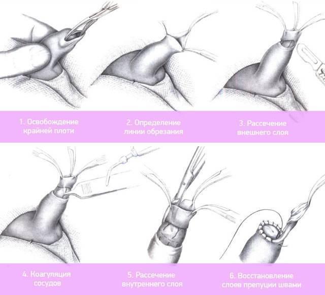 Обрезание у мальчиков: что это такое, для чего и когда его делают, как ухаживать после операции? | процедуры | vpolozhenii.com