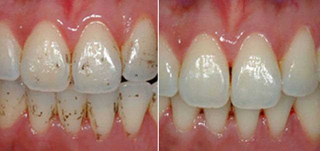 Фторирование зубов у детей - что это такое, как выглядит на фото до и после процедуры? | процедуры | vpolozhenii.com