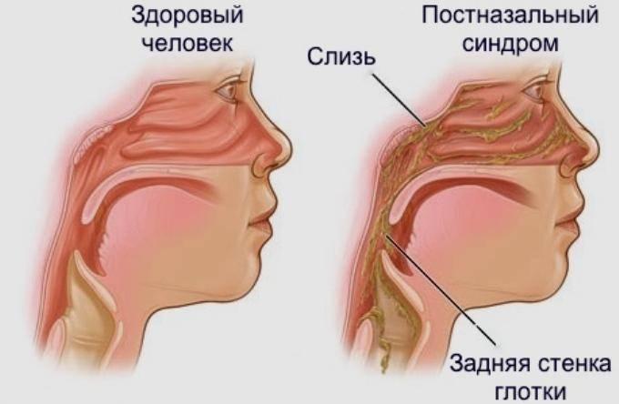 По задней стенке горла стекает слизь а соплей нет у ребенка как лечить — простуда