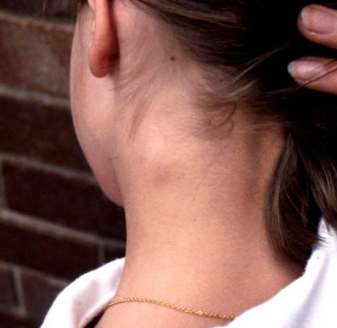 Лимфоузлы на затылке увеличены: причины и лечение воспаления