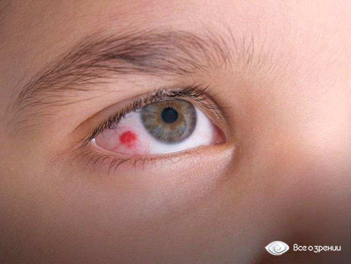 Гноятся глаза у новорожденного. чем лечить, промывать в домашних условиях. что говорит комаровский, форумы