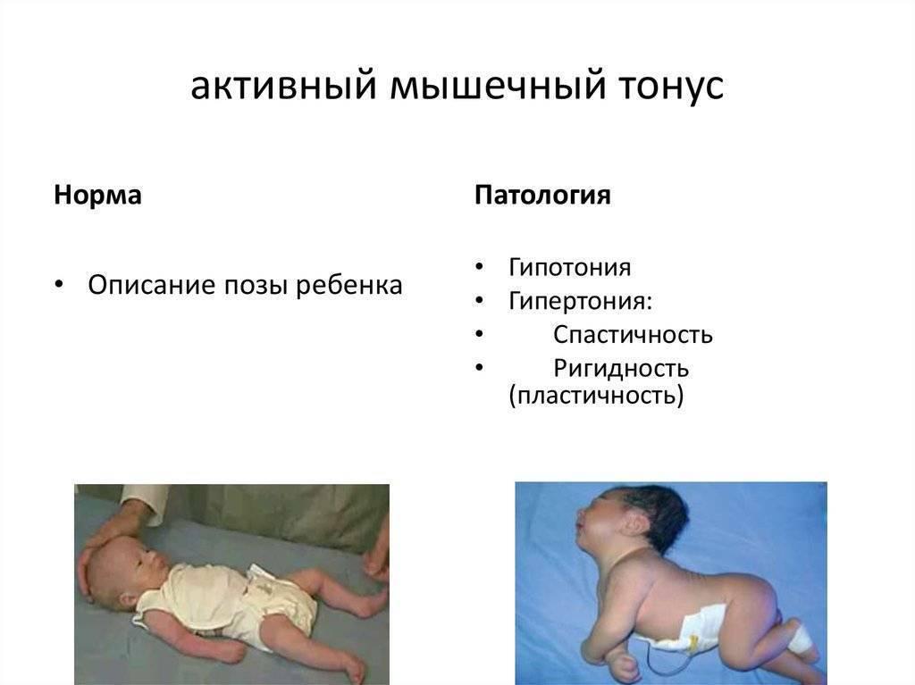 Гипертонус у младенцев: симптомы и лечение