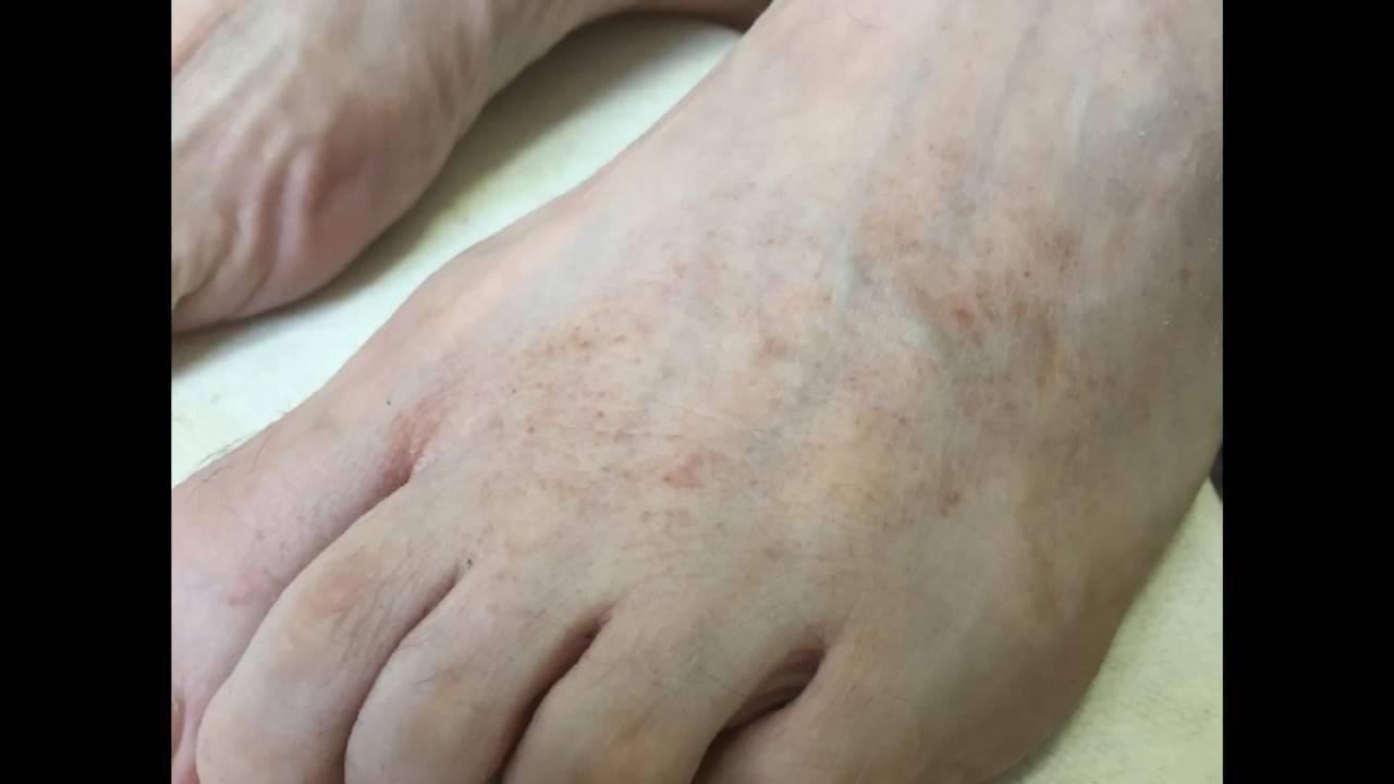 Геморрагический васкулит – причины, симптомы и лечение