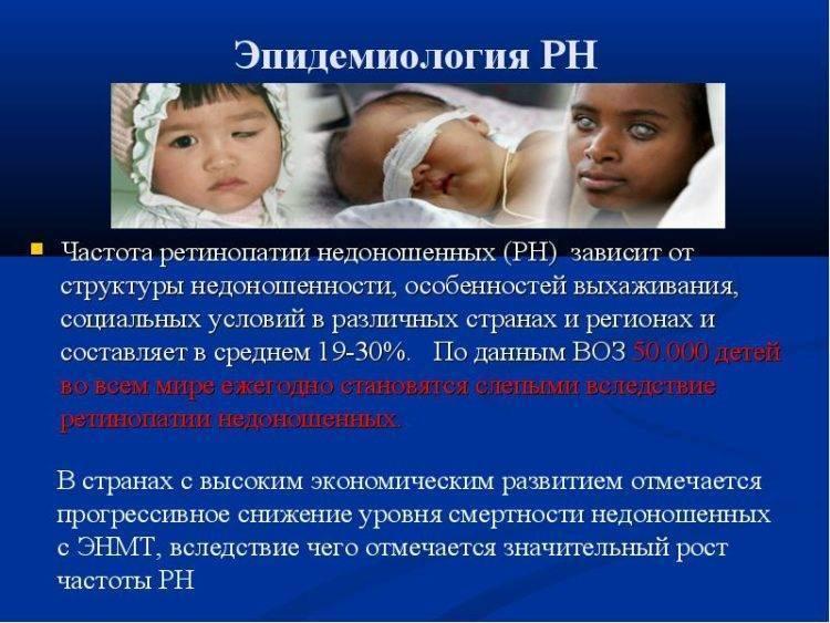 """Ретинопатия недоношенных: симптомы и лечение - """"здоровое око"""""""