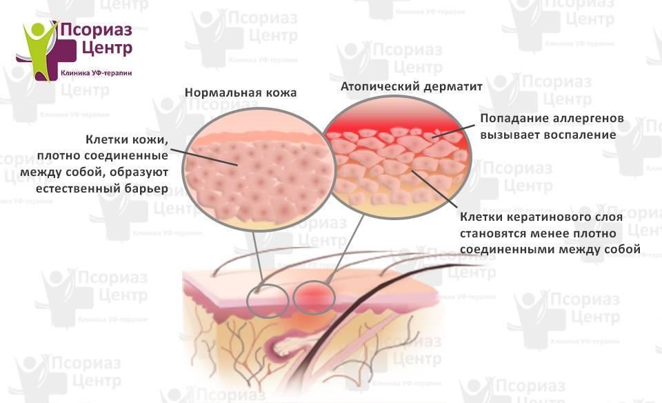 Дерматит у детей симптомы фото начальная стадия