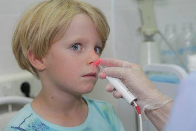 Лечение аденоидов лазером у детей (лазеротерапия)