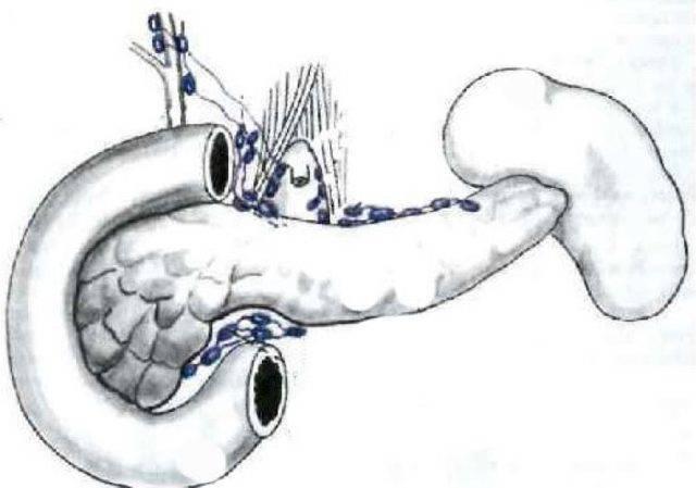 Диагностика и лечение, увеличены лимфоузлы в брюшной полости у ребенка: симптоматика и причины - все о суставах