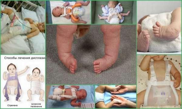 Лечение... пеленками: широкое пеленание как средство профилактики дисплазии тазобедренных суставов