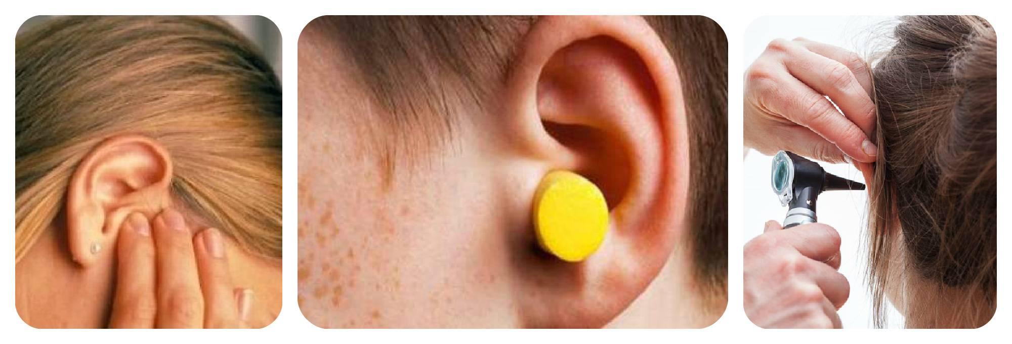 Серная пробка в ухе у ребенка: откуда она возникает и как ее извлечь