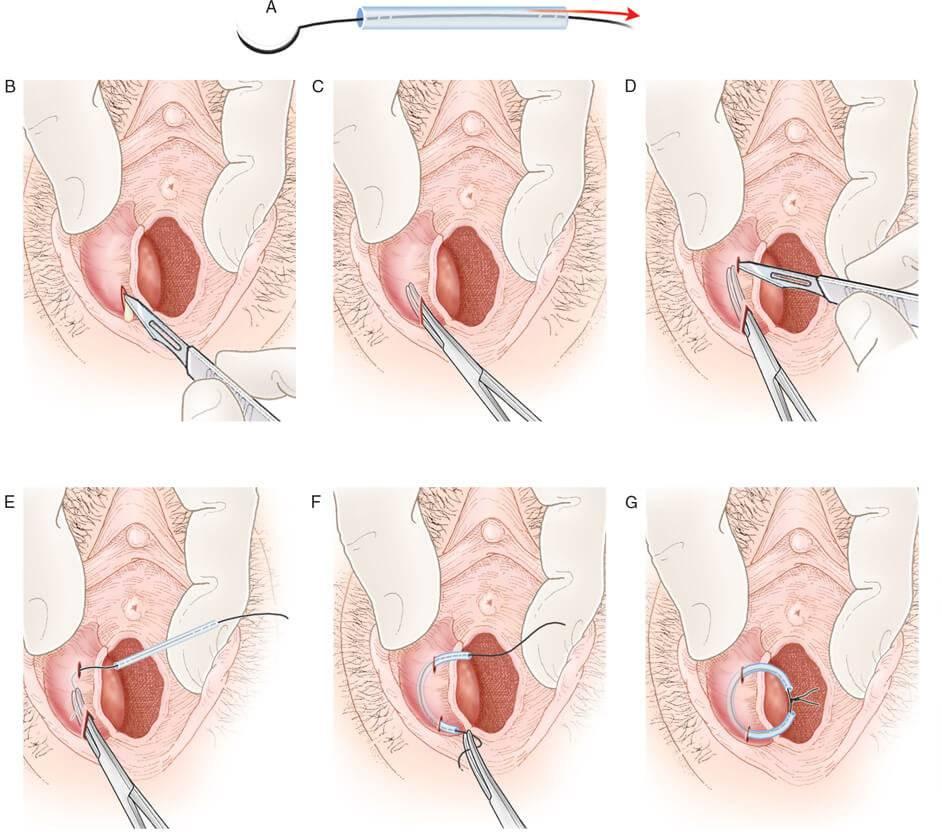 Отек половых губ при беременности