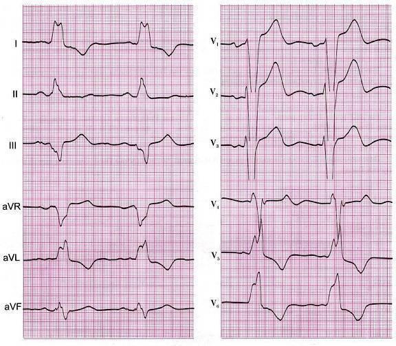 ✅ что такое нбпнпг в кардиологии у ребенка - денталюкс.su