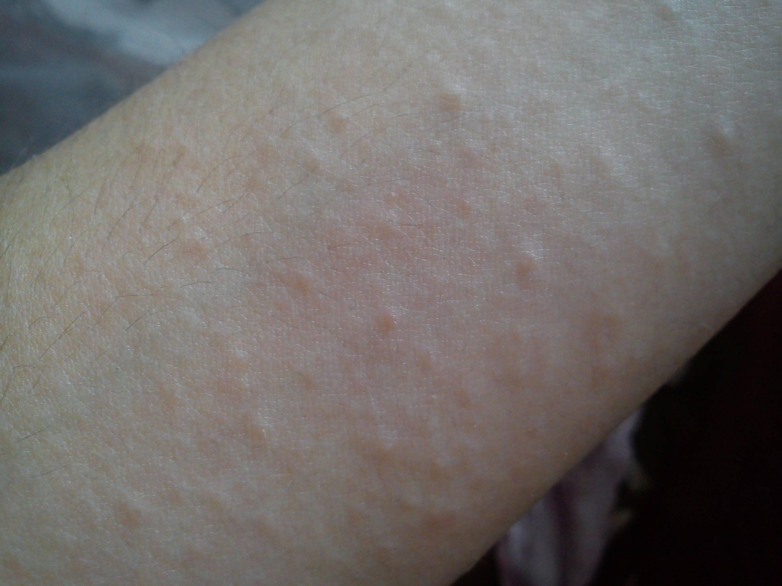 Cыпь на спине у взрослого: красные пятна и высыпания, почему появились прыщи и чешутся – причины