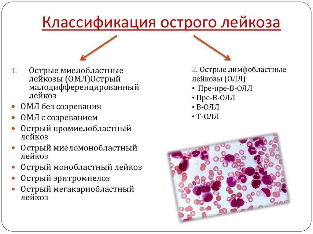 Острый лимфобластный лейкоз у детей: причины, симптомы, признаки и лечение