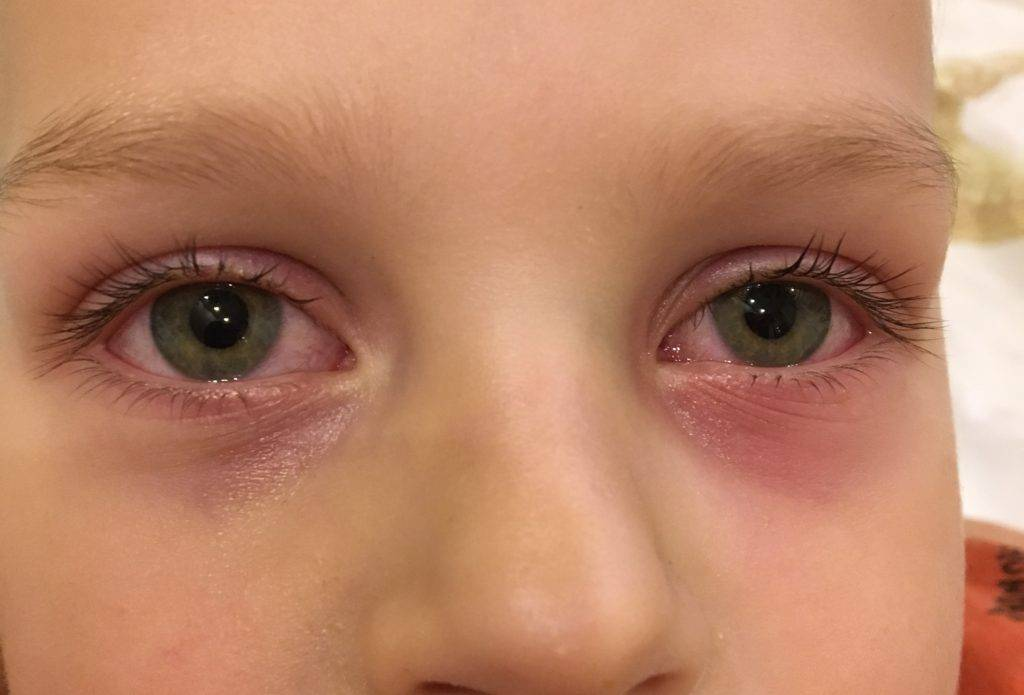 Воспаление глаза - причины и как снять в домашних условиях