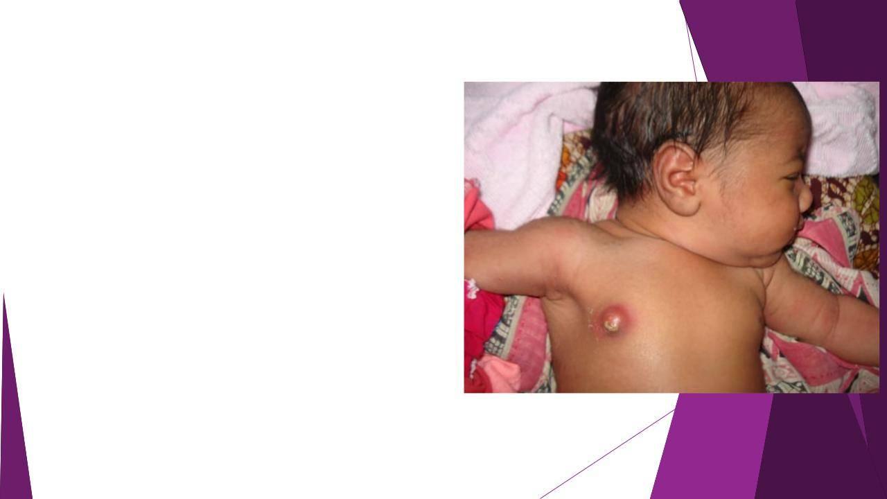 Набухание молочных желез у грудничков. опасно ли набухание молочных желез у новорожденных детей - новая медицина