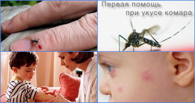 Чем можно и нужно мазать комариные укусы?