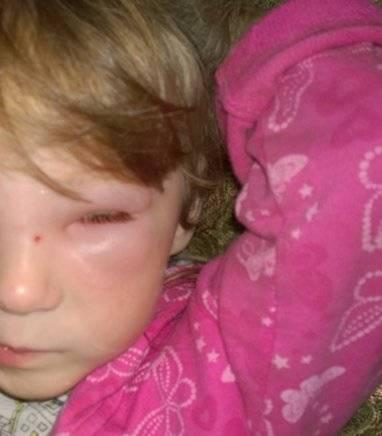 Ребенка укусил комар в глаз, все опухло - что делать, как снять отек на веке?