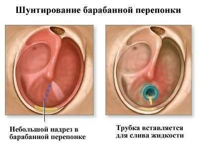 Шунтирование барабанной полости выполняют при. стоимость операции | здоровье человека