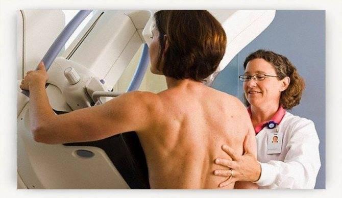 Рентген при грудном вскармливании: можно ли делать, сцеживать молоко