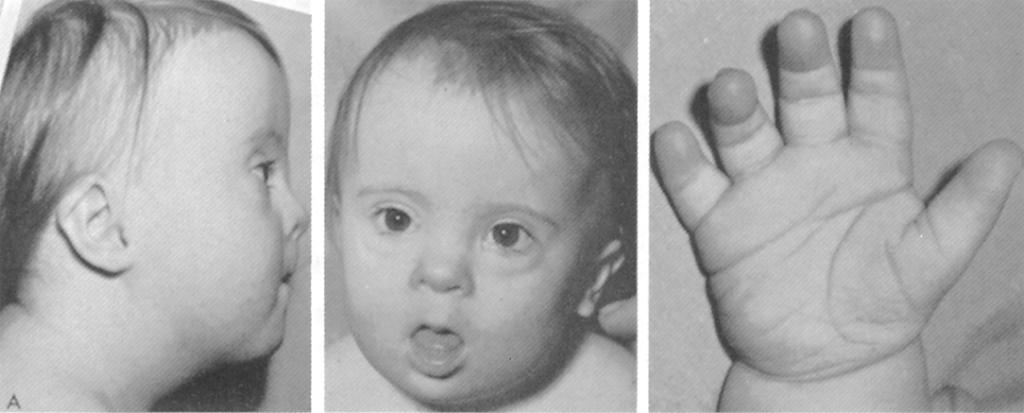 Синдром дауна (трисомия 21). причины, симптомы, признаки, диагностика и лечение патологии