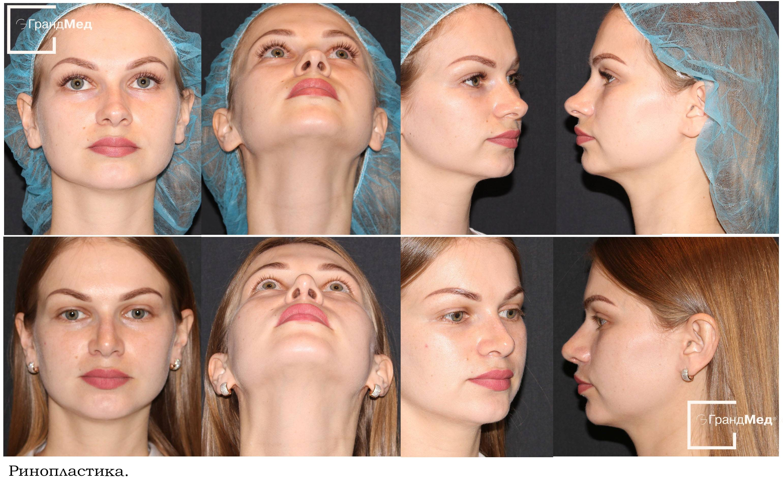 Клиника перелома носа у детей, диагностика и лечение