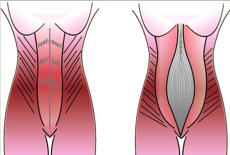 Влагалище после родов: как выглядит, почему растягивается, восстановление женского органа