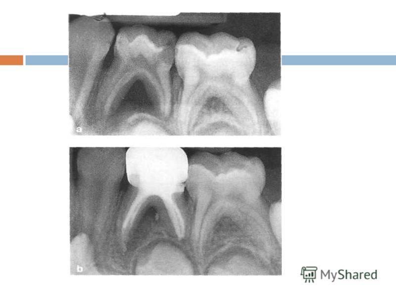 Лечение пульпита молочных зубов у детей – удалять или нет