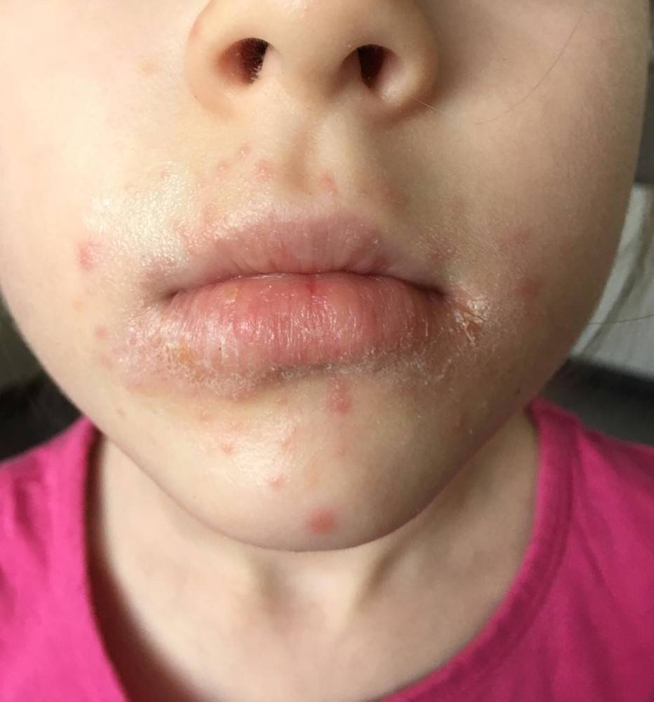 Околоротовой дерматит на лице: лечение, причины, симптомы