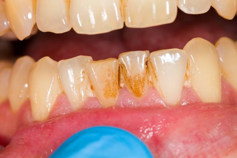 Почему молочные или коренные зубы у ребенка стали желтыми