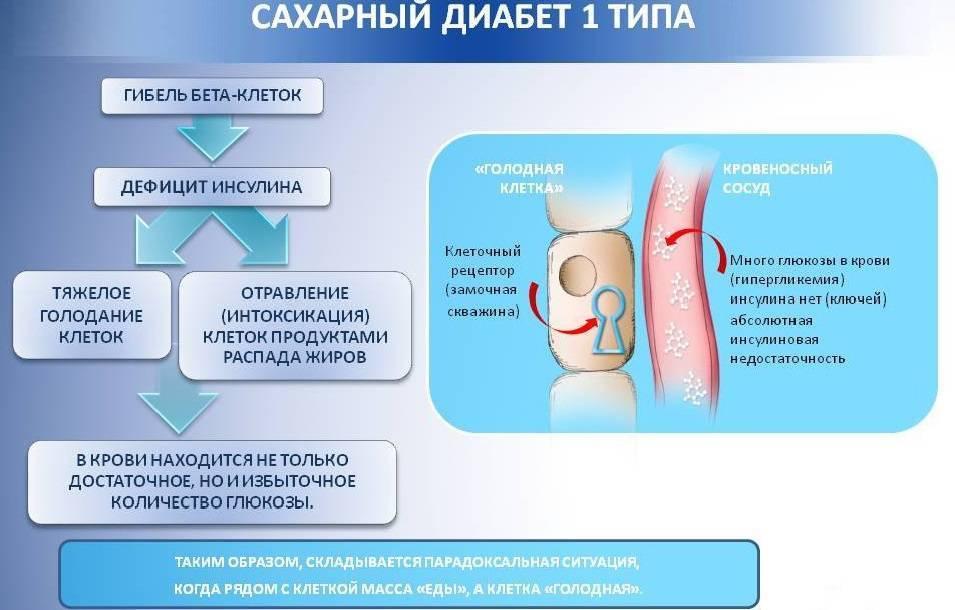 Сахарный диабет 2 типа у детей: этиология, симптомы и признаки, а так же рекомендации по лечению
