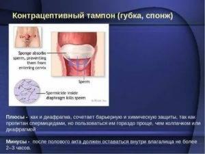Тампоны  и губки противозачаточные, как применять эти контрацептивы?