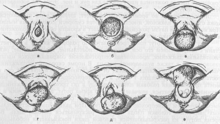 После родов у женщин болит копчик и поясница: почему больно сидеть и что делать?