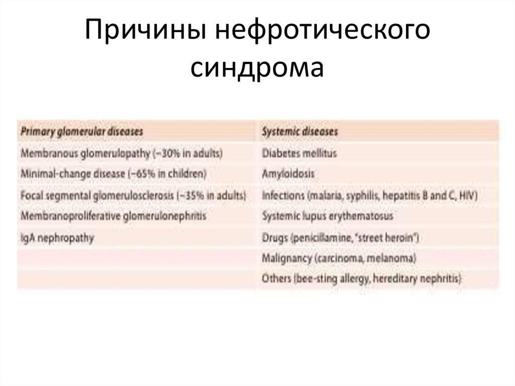 Нефротический синдром у детей - причины развития заболевания и лечение   заболевания   vpolozhenii.com