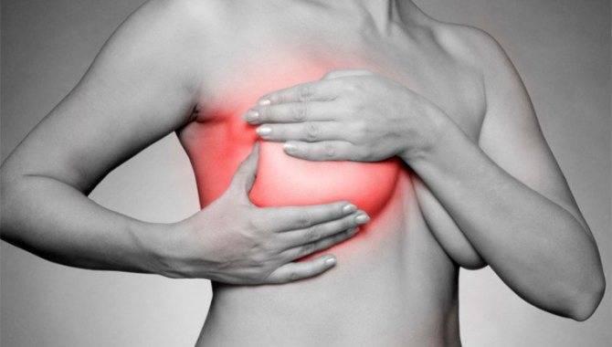 Почему набухает и болит грудь перед месячными, как бороться с этим?