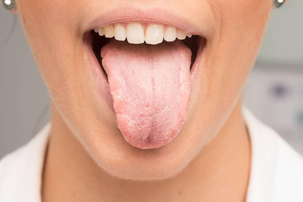 Кандидозный стоматит полости рта у детей: фото и способы лечения грибка
