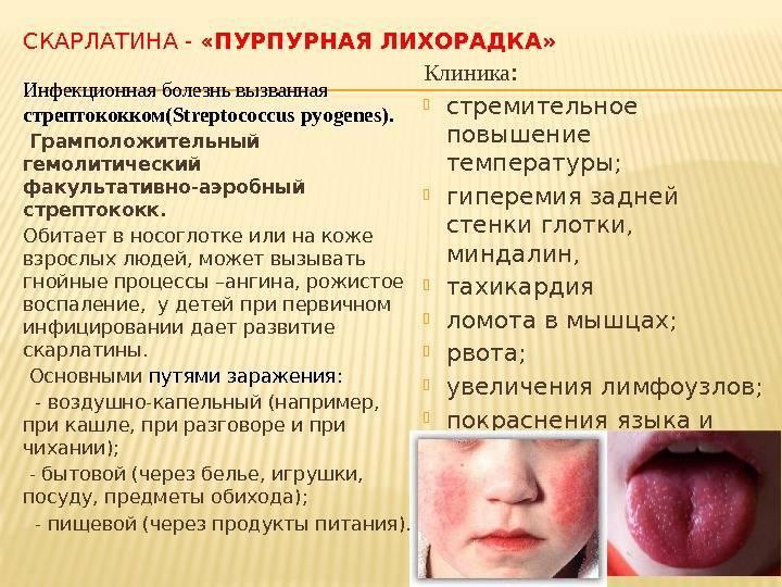 Скарлатина у детей: симптомы, лечени и профилактика