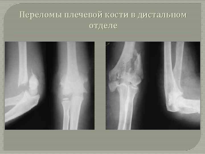 Закрытый межмыщелковый перелом плечевой кости